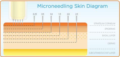 Microneedling skin diagram