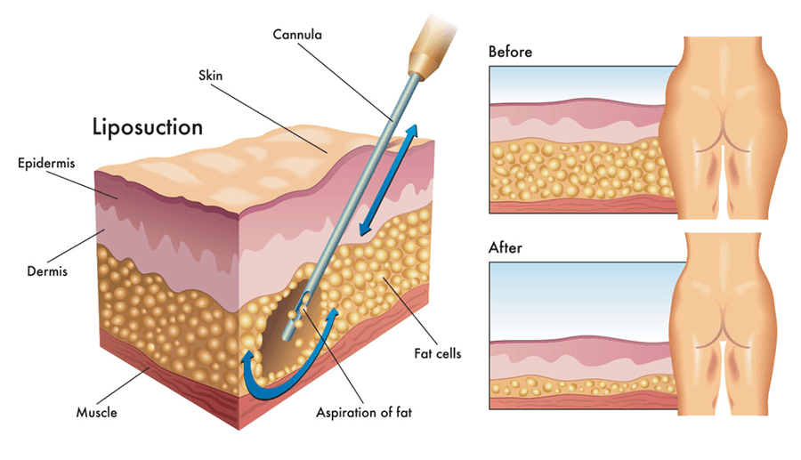 Liposuction Surgery Illustration